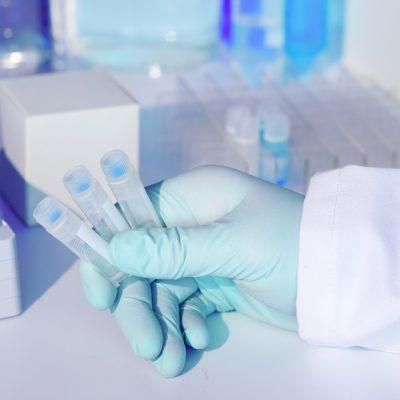 Sorologia de Anticorpos totais - CORONAVÍRUS
